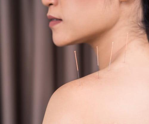 Hoofdpijn acupunctuur AHC-Chen