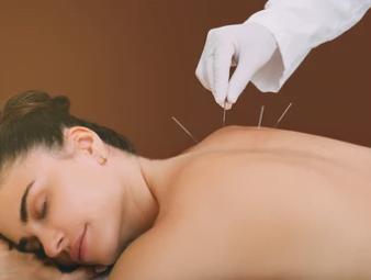 Stressklachten acupunctuur stress