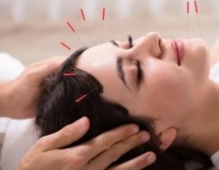 Cosmetische acupunctuur gezicht