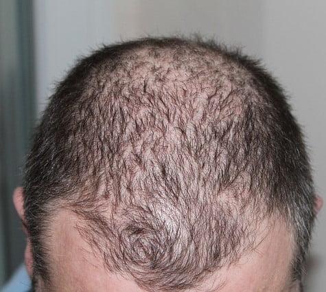 Kaalheid (Alopecia) acupunctuur