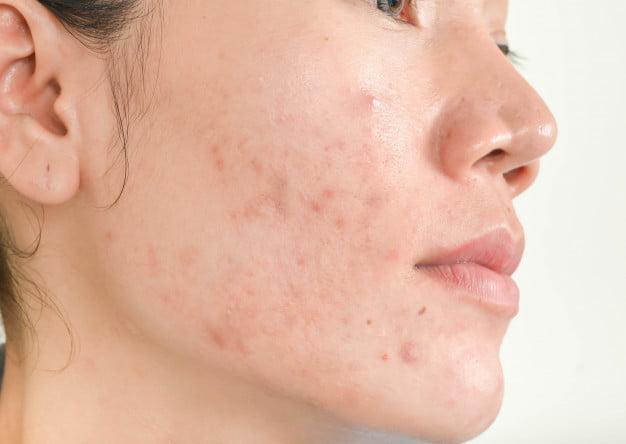 acne acupunctuur