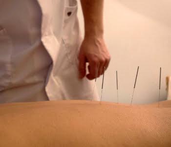 acupunctuur fibromyalgie