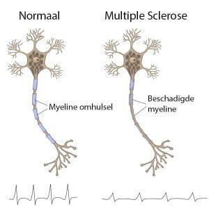 Multiple Sclerose (MS)